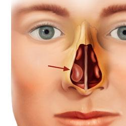 operasi sinusitis dokter tht terbaik